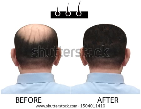 bald man before and after,  hair transplantation, before and after bald head of a man, a bald man before and after bald head of a man on white background.