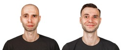 bald man before and after transplant hair and alopecia. Isolated on white background.