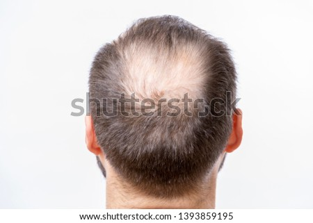 Bald man has a problem of head baldness and hair loss