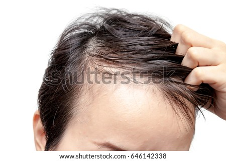 Bald man or woman worry about his or her less hairline on white background isolated