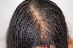 Bald man or woman worry about his or her  less thin hair on white background.