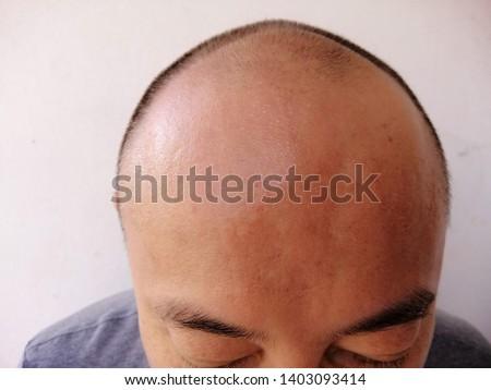 Bald men, Wide forehead and thin hair, less hair.