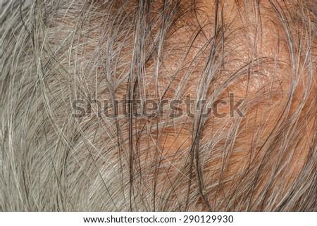 Balding gray hair