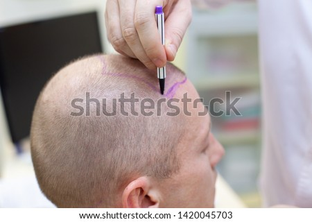 Baldness treatment. Patient suffering from hair loss in consultation with a doctor. Preparation for hair transplant surgery. The line marking the growth of hair. The patient controls the marking in