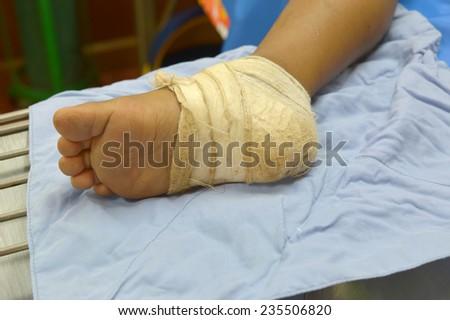 bandage on injury foot.