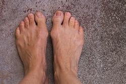 Bare feet with bunions or Hallux Abducto Valgus deformity.