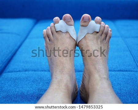 Bare foots which have Hallux Valgus (bunion) problem on blue sofa bed. A deformity of the joint connecting the big toe to the foot and caused painful. #1479853325