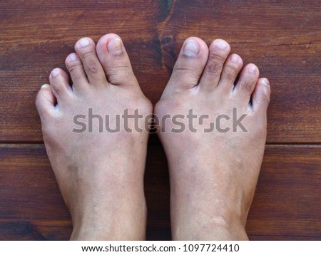 Bare foots which have Hallux Valgus (bunion) problem on wooden floor. A deformity of the joint connecting the big toe to the foot and caused painful. #1097724410