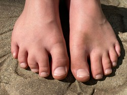 Barefoot young boy with webbed toe, syndactyly of the middle toes on right foot. Genetic congenital conditions and common birth abnormalities.