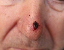 Basal-cell carcinoma skin cancer on the nose