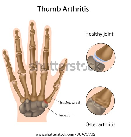 Base of thumb arthritis