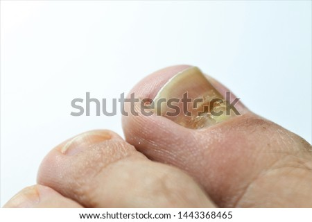 Beau's lines are deep grooved lines that run from side to side on the fingernail or the toenail.They may look like indentations or ridges in the nail plate. May be caused by a lack of Zinc / Calcium. Photo stock ©