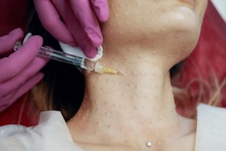 Beautician doctor with botulinum toxin syringe making injection to platysmas bands.Neck rejuvenation mesotherapy.Anti-aging treatment and face lift in cosmetology clinic.Patient lying on chair.