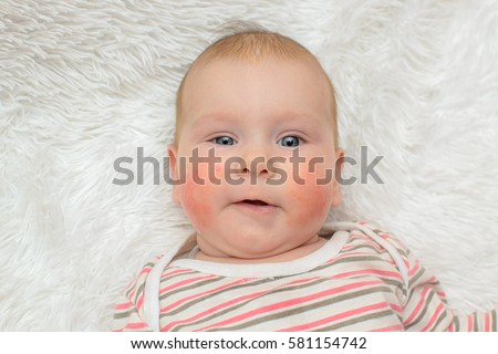 beautiful child allergic rash on the cheeks smiling on a white background