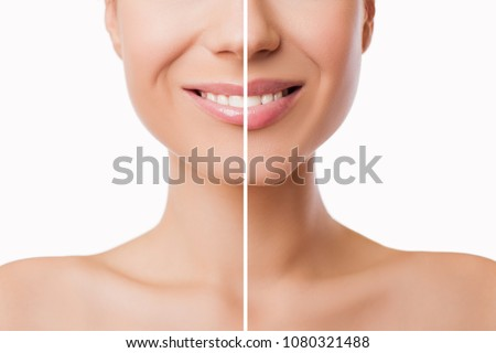 Beautiful plump Lips after filler injection collagen to increase the volume of the lips. Beauty concept. Female lips before and after augmentation procedure - Image