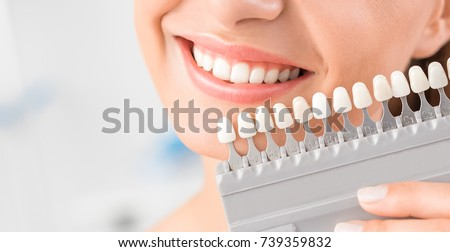 Beautiful smile and white teeth of a young woman. Matching the shades of the implants or the process of teeth whitening. - Shutterstock ID 739359832