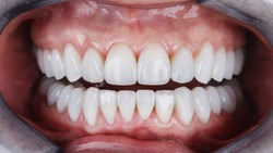 beautiful teeth with ceramic veneers of the patient's upper and lower jaws