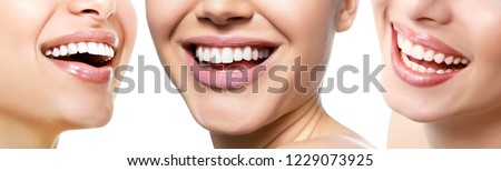 Beautiful wide smile of young fresh women with great healthy white teeth, isolated over white background. Smiling happy women. Laughing female mouth. Teeth health, whitening, prosthetics and care