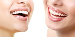 Beautiful wide smiles of young fresh women with great healthy white teeth, isolated over white background. Smiling happy women. Laughing female mouth. Teeth health, whitening, prosthetics and care