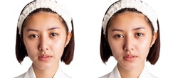 Beautiful young asian woman has freckles, dull skin, compare another side Beauty girl has nice and bright skin on face. Attractive girl get happy after get facial rejuvenation Cosmetology concept.