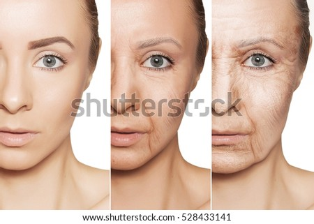 Beauty concept skin aging, anti-aging procedures on caucasian woman face #528433141