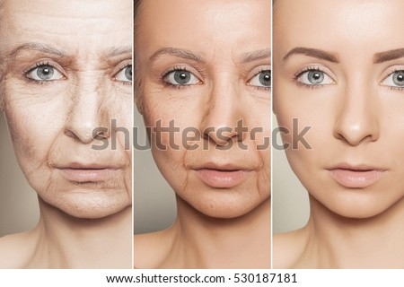 Shutterstock Beauty concept skin aging, anti-aging procedures on caucasian woman face