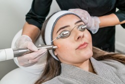 Beauty laser technician performing a cosmetic skin resurfacing session on a female patient, also called a laser peel  or photofacial, with an Er:Yag laser (infrared wavelength).