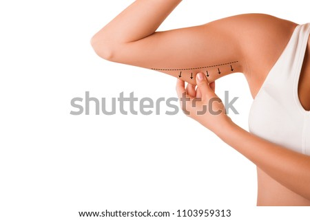 Beauty Portrait  Woman pinching Arm Fat Flabby Skin, Hand and Body Care. smooth skin
