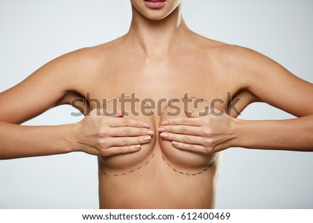 Beauty Treatment. Slim Topless Young Woman With Hot Body Holding Tight Sexy Breast With Hands. Beautiful Woman Covering Breast With Black Surgical Lines. Plastic Surgery Concept. High Resolution