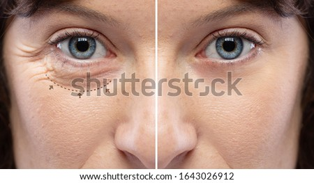 Before and after a rejuvination treatment, wrinkles and crow's feet removal Lines and arrows shows blepharoplasty zone Stock photo ©