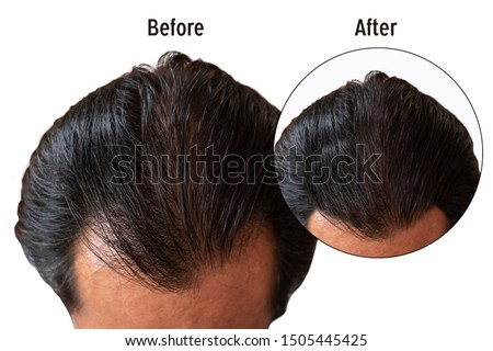 Before and after bald head of a man isolate background/hair loss concept.