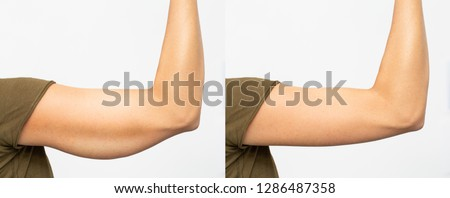 Before and after excess skin removal under the arm