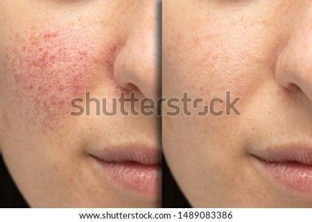 Before and after laser treatment for rosacea, couperose. Successful intervention Stockfoto ©