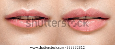 Before and after lip filler injections. Perfect Lips Woman Sexy Mouth open. Fillers. Lip augmentation Beauty young woman Lips. Close up over white background