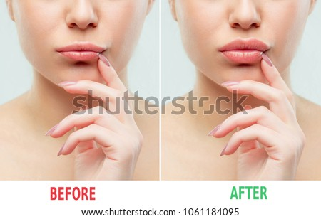 Before and after lips filler injections. Beauty plastic. Beautiful perfect lips with natural makeup. Sexy macro with female mouth.Plump lips augmentation. Salon procedure