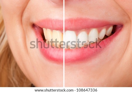 Before and after of a dental whitening procedure - stock photo