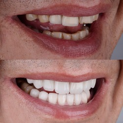 Before and after of smile makeover treatment with ceramic crown and porcelain laminated veneers.