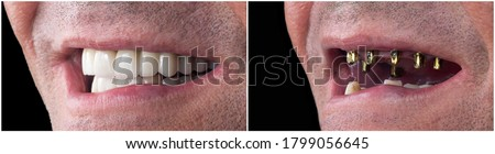 before and after pictures of dental implants and press cerami crowns Photo stock ©