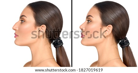 Before and after plastic surgery of nose. Rhinoplasty. Crooked nose correcting. Young woman profile portrait, isolated on white background. Beauty female, model girl face close-up. Aesthetic medicine Stockfoto ©