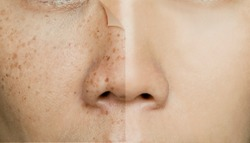 Before and After Retouching Freckles on Asian Woman Face, Skin Problems