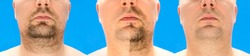 Before and after shaving. collage of young man with unformed, untrimmed, overgrown stubble, hair on his face and neck, half and with completely shaved beard. Isolated on blue background.