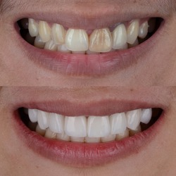 Before and after shot of smile makeover by dental ceramic veneer, porcelain laminated veneers.