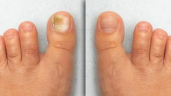 Before and after successful treatment for a fungal infection on toe