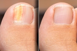 Before and after successful treatment for a fungal infection on toenail
