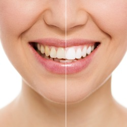 Before and after teeth bleaching or whitening treatment. Close-up of young Caucasian female's smile.