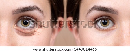 Before and after view of blepharoplasty surgery on a beautiful Caucasian lady, plastic surgery of the eyes to remove puffy bags, a common symptom of sleep deprivation and stress. Stock photo ©