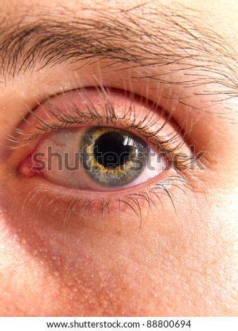 Bicolor eye of a young man