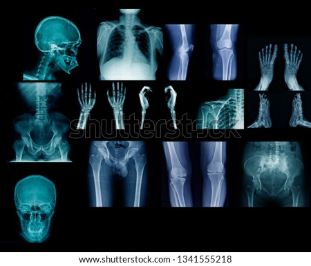 big collection x-ray image on black or dark background, hight quality of human anatomy by x-ray   #1341555218