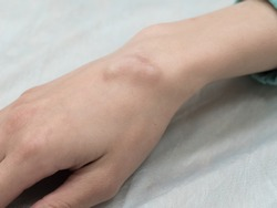 Big cyst hygroma, fluid filled lump associated with a joint, a tumor or swelling on top of a joint.
