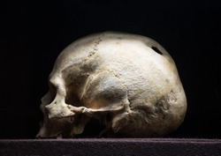 Big hollow in braincase isolated on dark backdrop. Gloomy rotten wreck child corpse. Terrible gray die pericranium. Closeup profile detail view with space for text